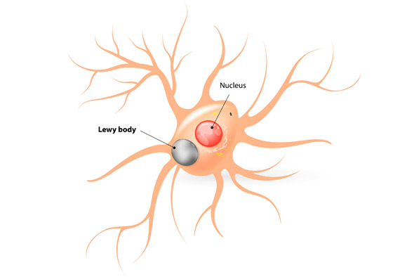 What Is Lewy Body Dementia on Addition Problems With Pictures