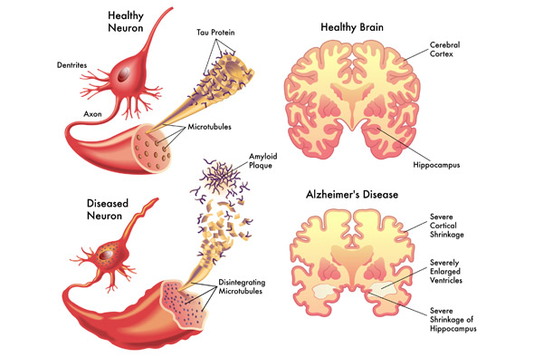Alzheimers Disease  >> What Is Alzheimer S Disease Balance